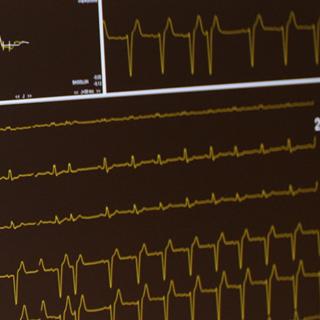 Concrete hartonderzoek voor huisartsen